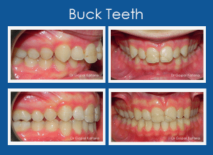 Buck teeth before and after