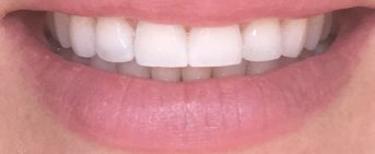 Why professional whitening options are better for you